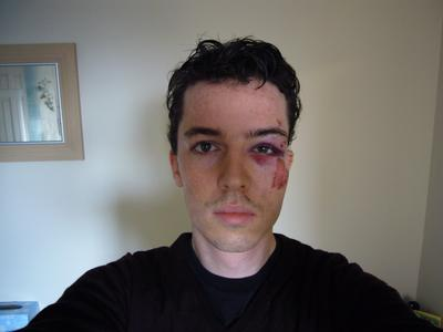 My face after my cycling accident